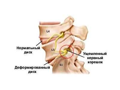 20 недель болит спина