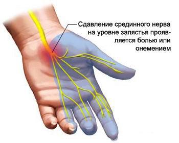 Защемление нерва. Лечение в клинике остеопатии «Остмед» г. Москва