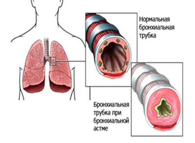 Бронхиальная астма - лечение